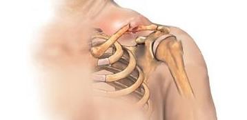 Перелом лучевой кости, хирургическое лечение ключицы