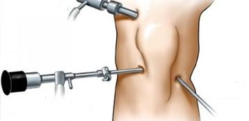 Артроскопия коленного сустава Харьков