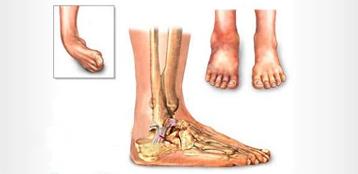 Хирургическое лечение лодыжки