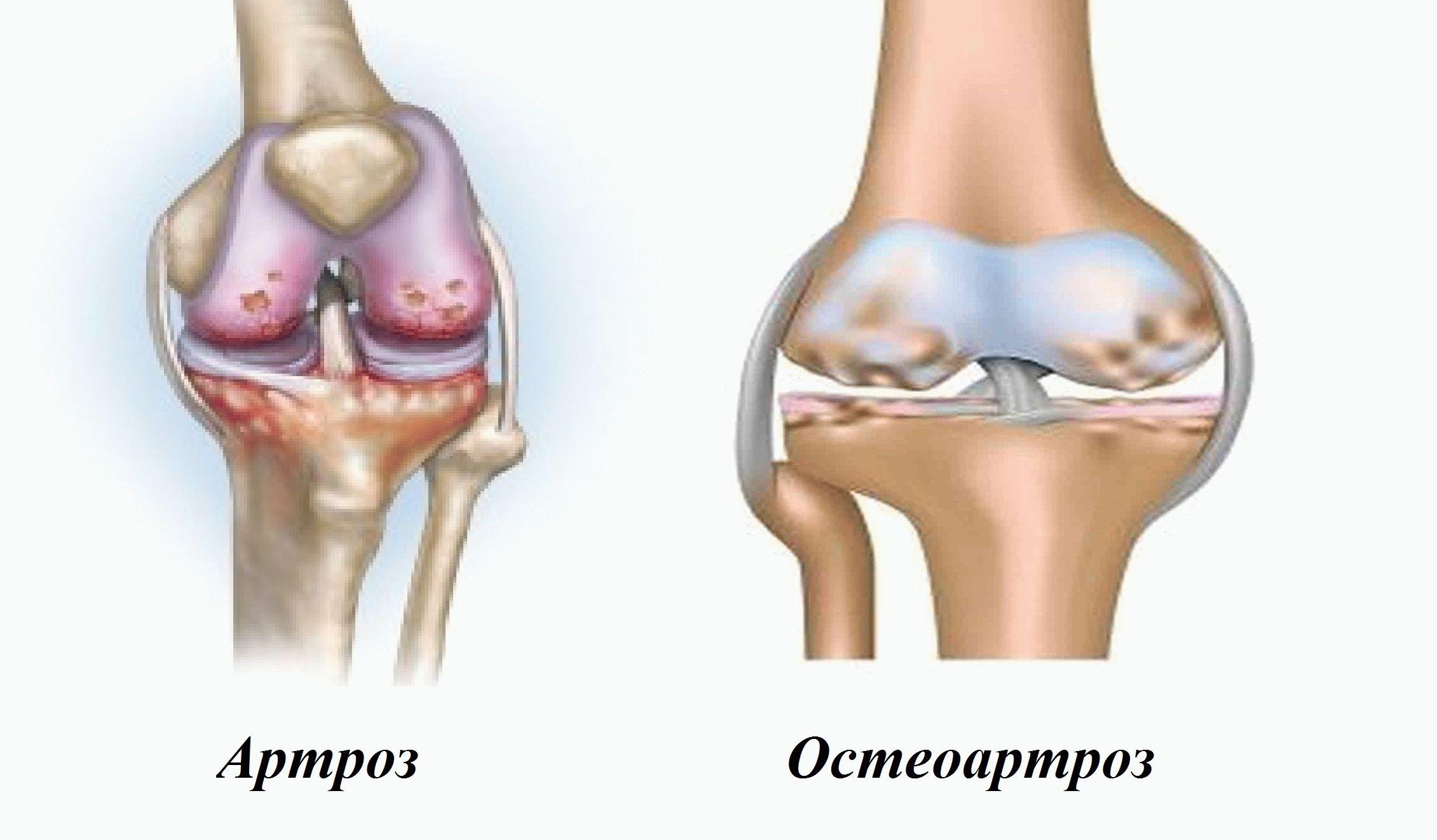 Заболевания артроз и остеоартроз