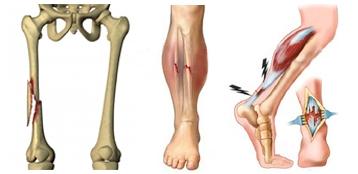 Хирургическое лечение конечностей - перелом бедра