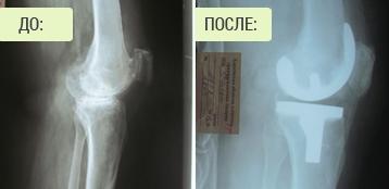 Гонартроз - эндопротезирование коленного сустава