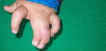 Врожденная синдактилия - лечение