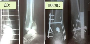 Лечение перелома лодыжки