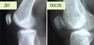 Результати хірургічного лікування дисплазії колінного суглоба