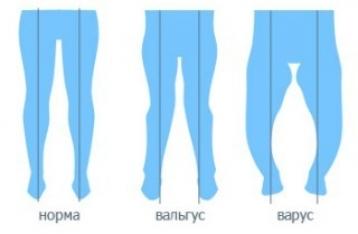 Варусная деформации нижних конечностей