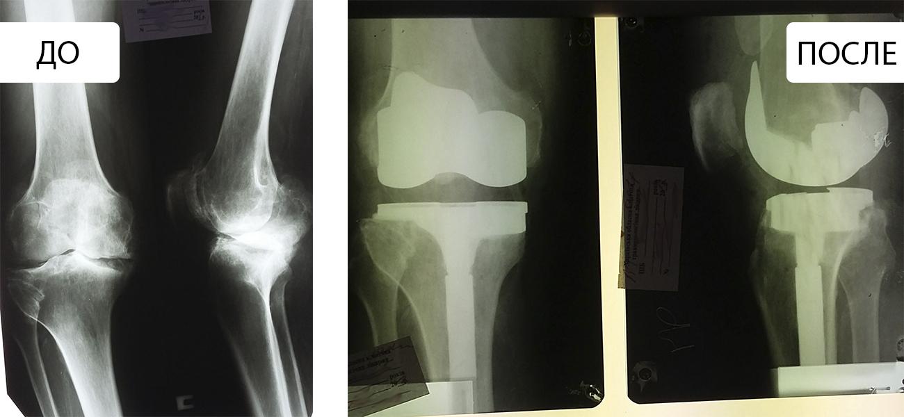 Нарушение функции правого коленного сустава II степени