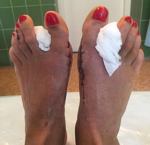hallux valgus операція на ногах