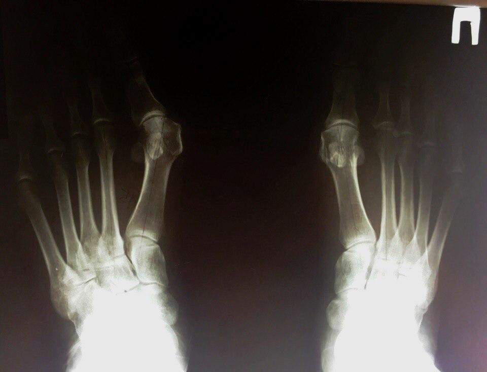 Hallux Valgus рентген