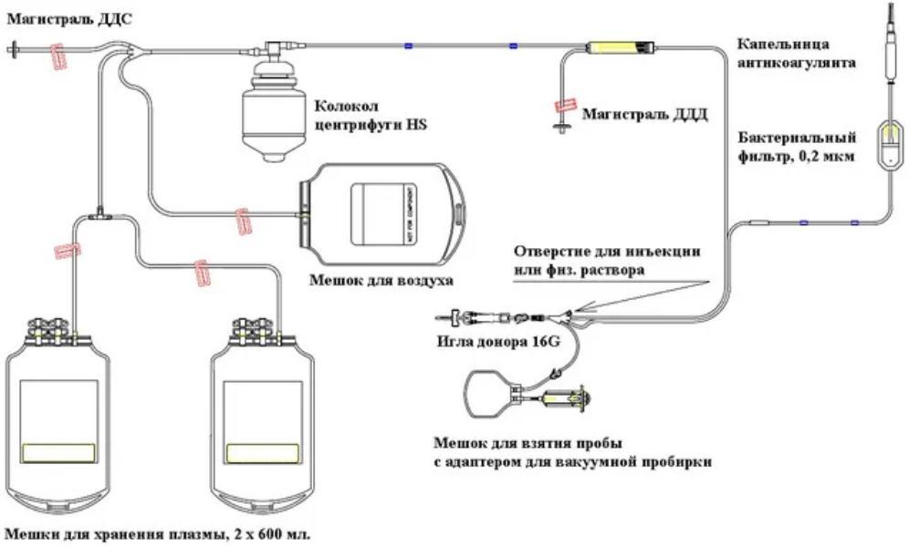 схема плазмофереза
